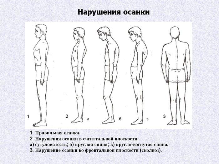 ФОТО: ds02.infourok.ru Чаще всего искривление выражается в изогнутости позвоночного столба